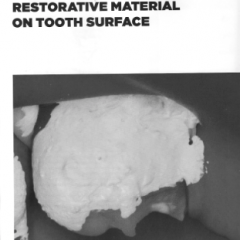 The problem of excess restorative material on tooth surface